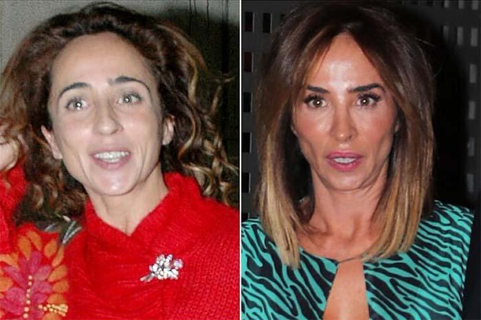 El antes y después de María Patiño